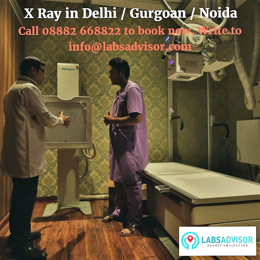 x-ray-cost-in-delhi-by-labsadvisor
