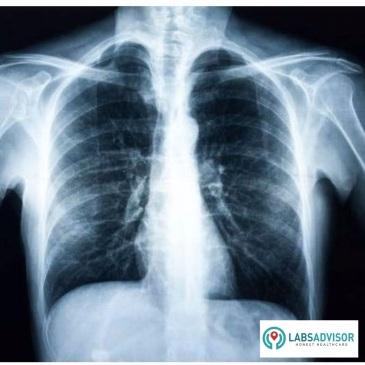 labsadvisor-com-x-ray-images