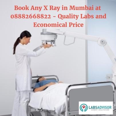 labsadvisor-com-x-ray-in-mumbai