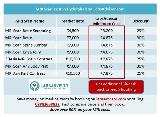Get 30% discount on MRI Scan in Hyderabad