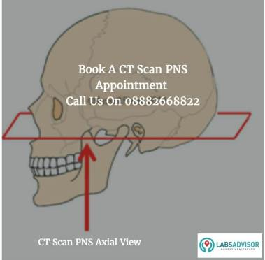 Cost of CT Scan PNS Axial View
