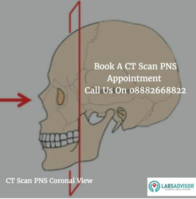 Cost of CT Scan PNS Coronal View