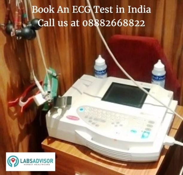 ECG Test Cost in India