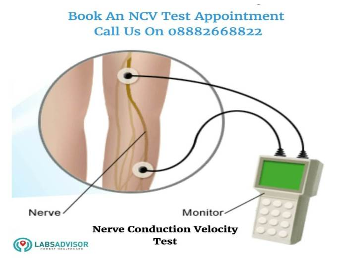 NCV Test Cost in India