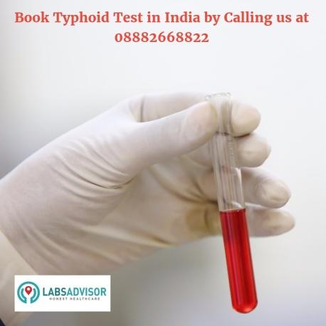 Typhoid Test Cost in Delhi