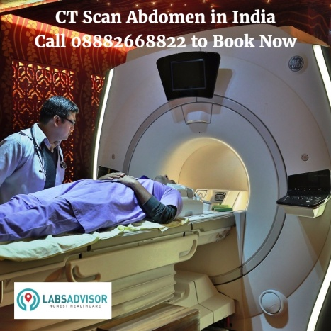 CT Scan Abdomen Cost in Delhi