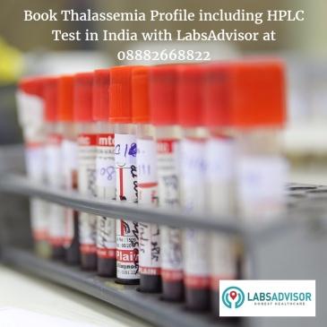 Thalassemia Profile Cost in Delhi