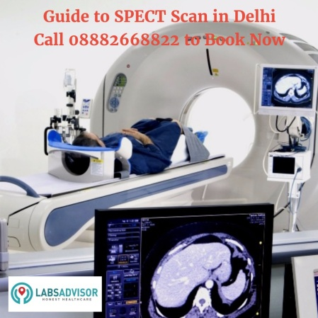 SPECT Scan Test Cost in Delhi